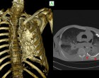 12. Computed Tomography (CT) imaging quality of the skeletal system of an embalmed human cadaver