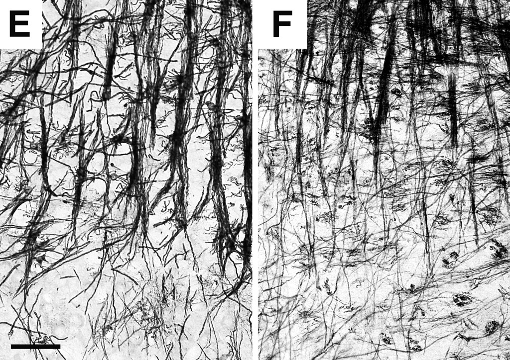 Sakakibara et al. BMC Neuroscience 2008