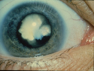 Cataract (National Eye Institute CC)