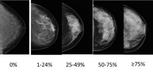 mammography-and-breast-density