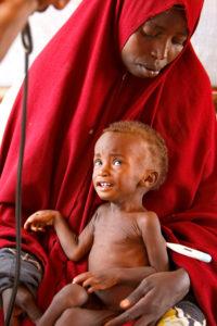 Mother holding malnourished child