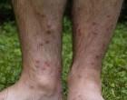 230px-Cercarial_dermatitis_lower_legs