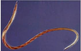 Adult Haemonchus cortortus the Barber's pole nematode