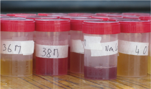 Haematuria –a common clinical symptom of urogenital schistosomiasis.
