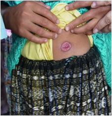 Ulcerative skin lesion on patient who has cutaneous leishmaniasis. (Credit: B. Arana, MERTU, Guatemala, via CDC)