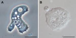 Acanthamoeba trophozoites. Image from Wikimedia commons, authors Jacob Lorenzo-Morales, Naveed A. Khan and Julia Walochnik
