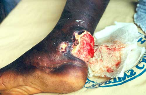 Buruli Ulcer can be caused by infection with M. ulcerans bacteria. Arsenic in water increases the risk of Buruli ulcer development
