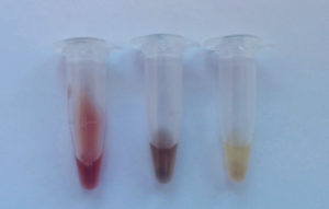Blood-fed mosquito abdomens crushed into solution showing different degrees of digestion. From left to right: a recently (<24 hours) blood-fed mosquito, 2-4 days after blood-feeding and 4+ days after blood-feeding. Source: V Brugman.