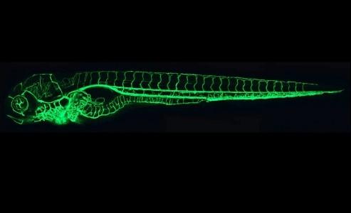 The Zebrafish vascular system