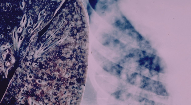 What has the project found about tuberculosis?