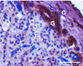 Adrenal gland stained with antibody to CaV3.2 calcium channel