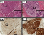 Staining of vemurafenib‐resistant tumors