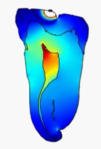 Ultrasound pulp
