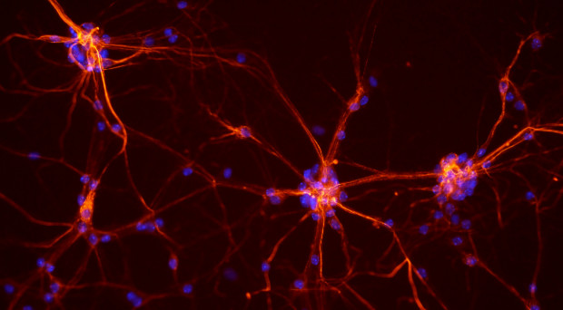 How has multiple sclerosis research advanced?
