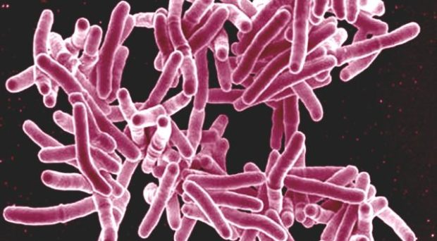 Mycobacterium tuberculosis bacteria, the cause of TB. Source: https://www.flickr.com/photos/niaid/5149398656